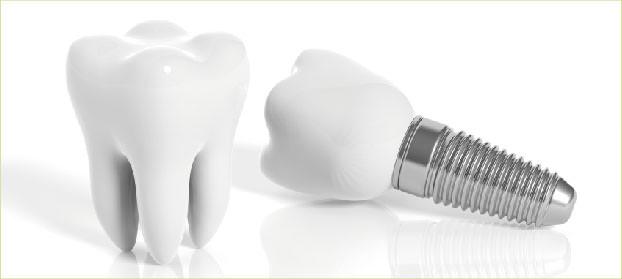 Zahnarzt Germering - Ronny Kauley - Implantologie - Zahnimplantate